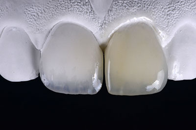 Pascal Magne - Update in anterior bonded restorations, Case 1.2