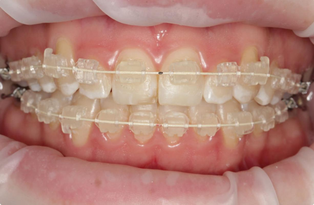 Anoop Maini - ClearSmile Brace - 6 week anterior view