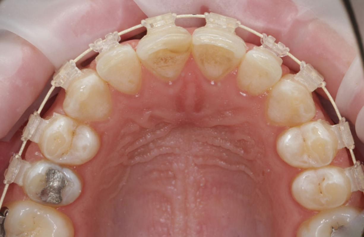 Anoop Maini - ClearSmile Brace - 10 week occlusal view