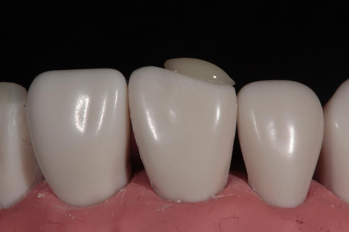 Tif Qureshi - Ortho restorative - case 2.2
