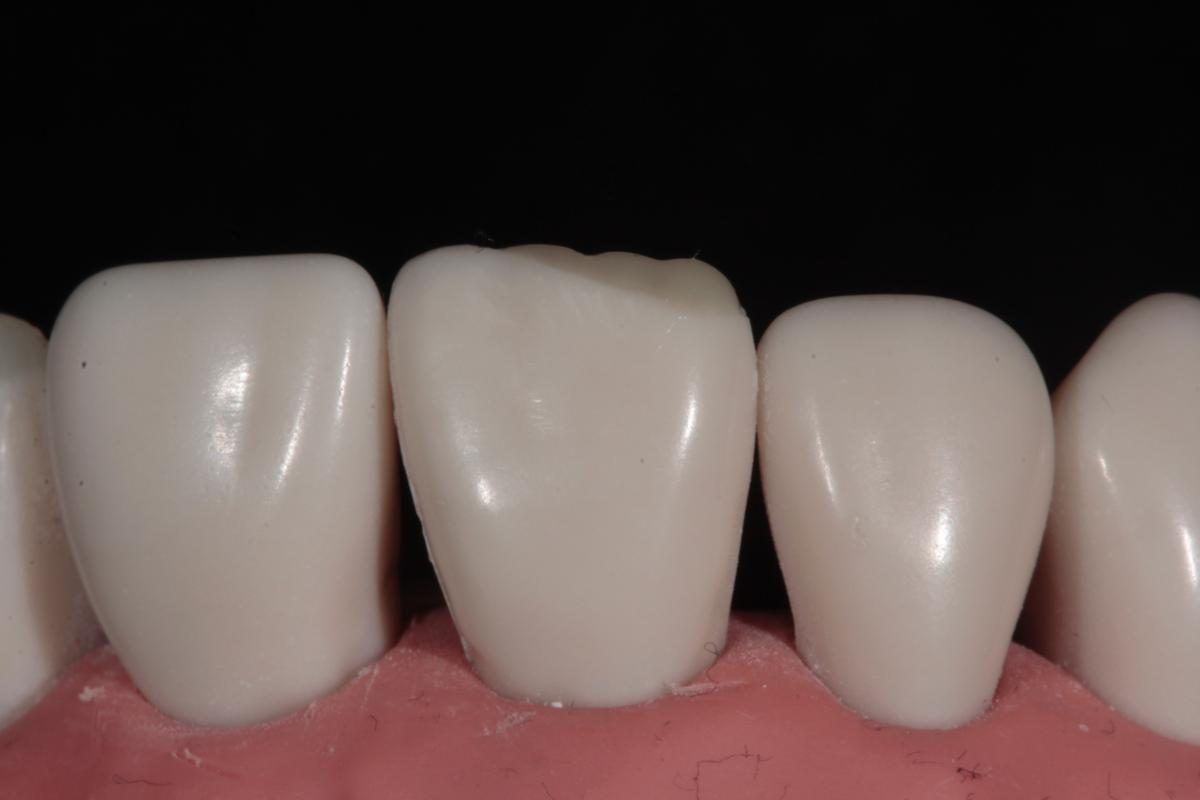 Tif Qureshi - Ortho restorative - case 2.3