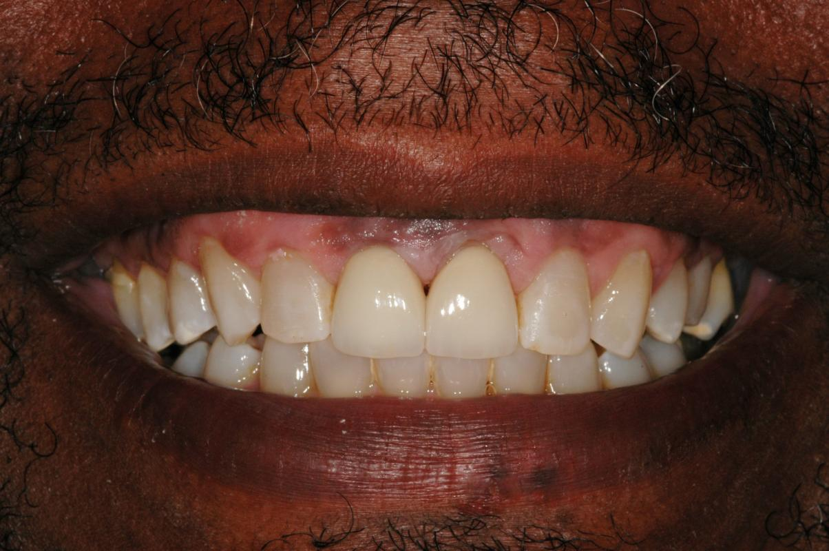 Anoop Maini - Clear Smile Brace - After ClearSmile Brace treatment