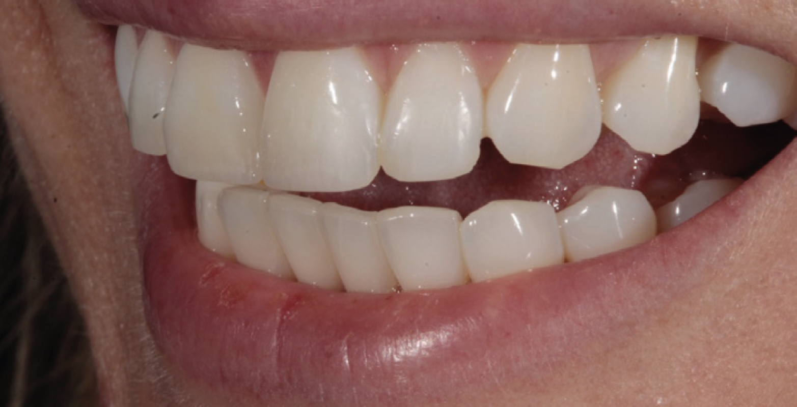 Tif Qureshi - Ortho restorative - case 1.4