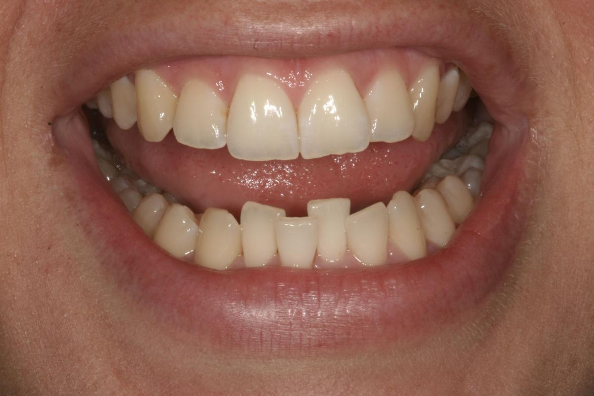 9 weeks of alignment, Inman Aligner