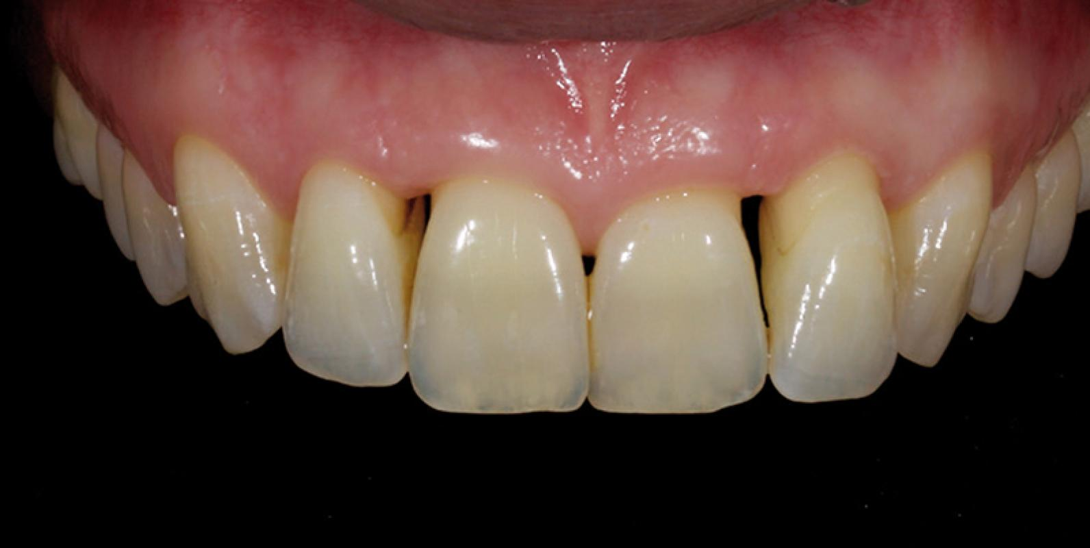 Direct Resin Restorations in the Anterior Dentition - Dr. Jason ...