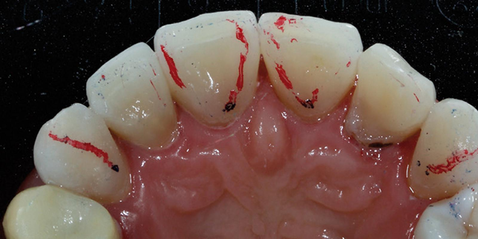 Jason Smithson - Direct Resin Restorations in the Anterior Dentition - Treating wear step 4