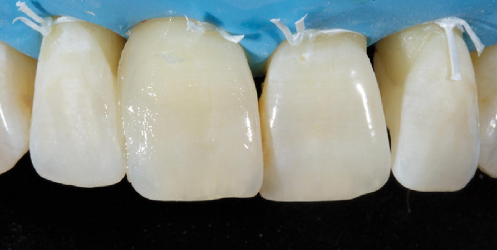 Jason Smithson - Direct Resin Restorations in the Anterior Dentition - Closing black triangles step 4