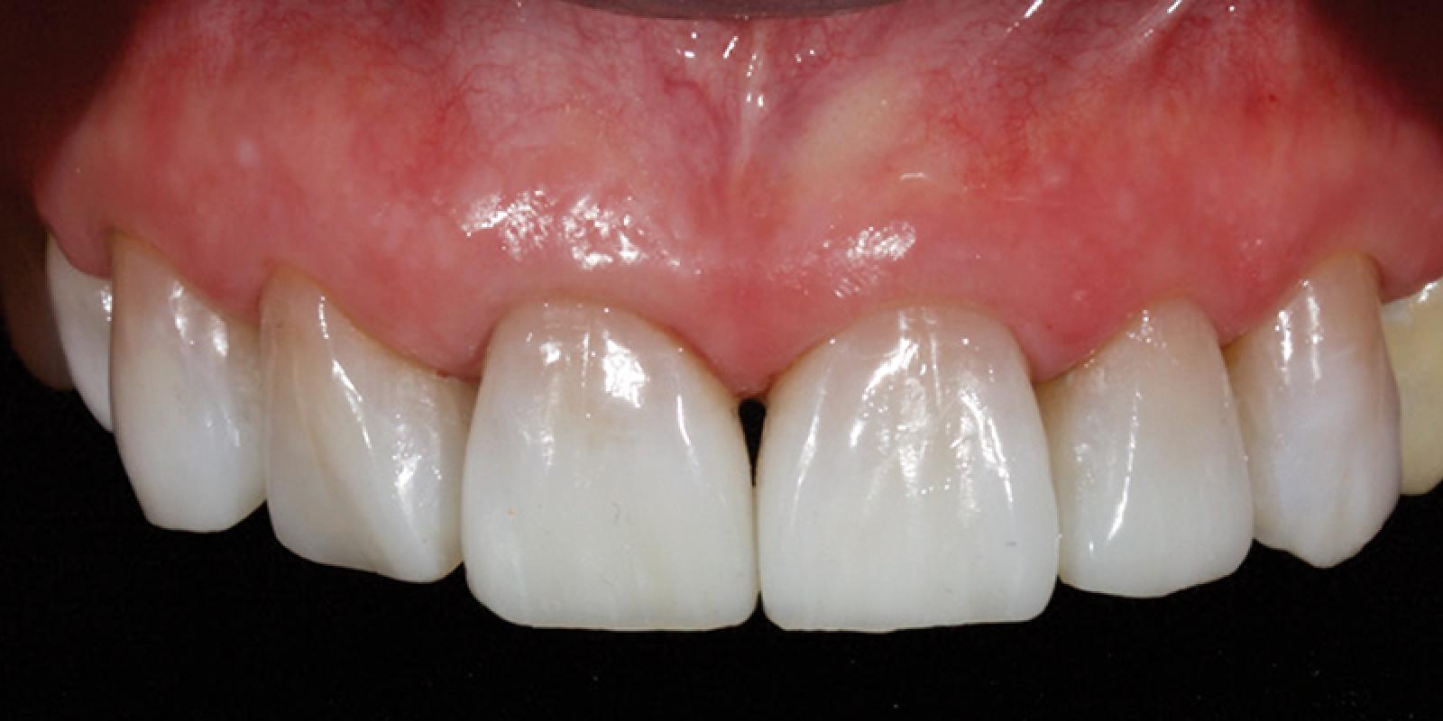Jason Smithson - Direct Resin Restorations in the Anterior Dentition - Treating wear step 5