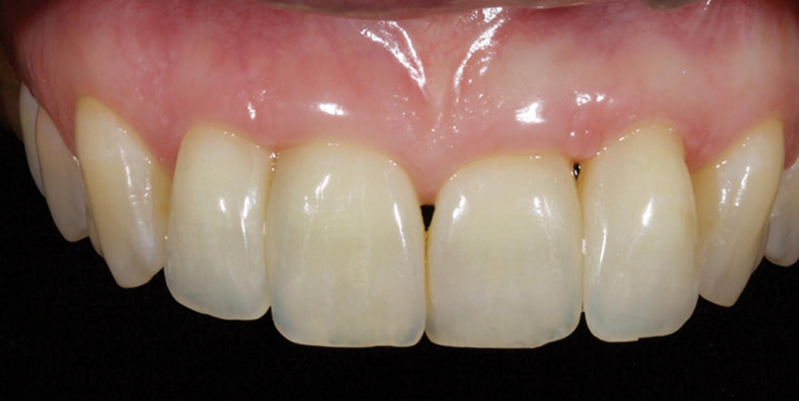 Jason Smithson - Direct Resin Restorations in the Anterior Dentition - Closing black triangles step 5