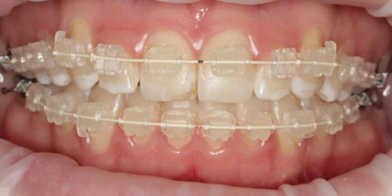 Anoop Maini - ClearSmile Brace - 10 week anterior view